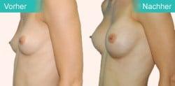 Brust OP in Tschechien vorher - nachher